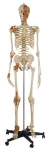 Rudiger® Total Skeleton