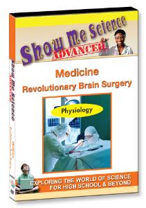Show Me Science: Medicine–Revolutionary Brain Surgery Video