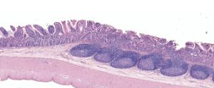 Ileum, Peyer's Patches Slide