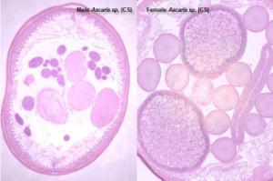 Composite male and female <i>Ascaris</i>