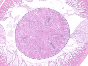 Ascaris lumbricoides- Esophagus Triradiate Lumen