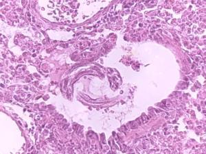 <i>Ascaris lumbricoides</i> Slide