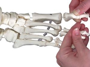 3B Scientific® Flexible Skeleton With Loosely Mounted Hands And Feet