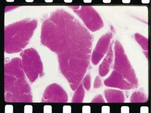 Muscle (Mammalian), Striated Slide