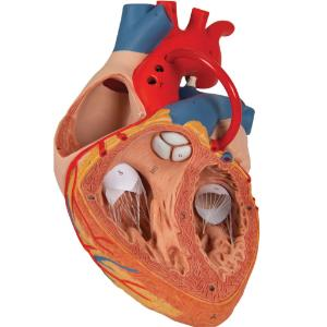 Heart with Bypass