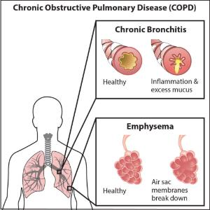Science Take-Out® Lung Disease