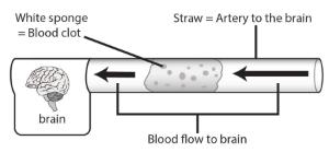 Science Take-Out® Testing A Clot Buster