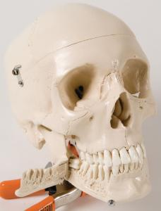 Skull With Extractable Teeth