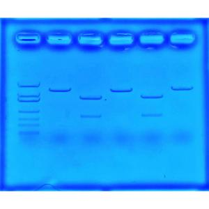 Gene detection for cystic fibrosis