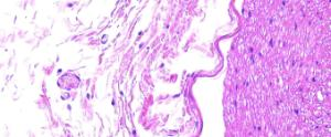 Medullated Nerve (Mammal)