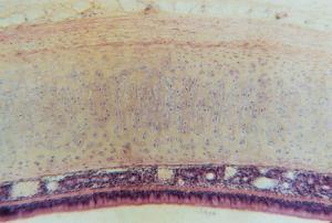Hyaline Cartilage, Mammal, Trachea