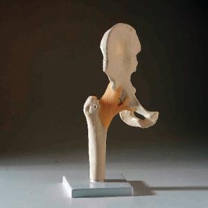 3B Scientific® Functional Joint Models