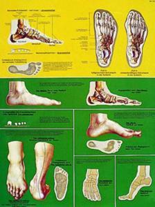 3B Scientific® Foot Chart
