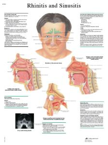 3B Scientific® Rhinitis Chart