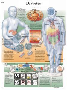3B Scientific® Diabetes Chart