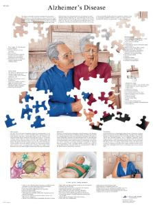3B Scientific® Alzheimer Disease Chart