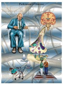 3B Scientific® Parkinson's Disease Chart
