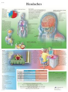3B Scientific® Headache Chart