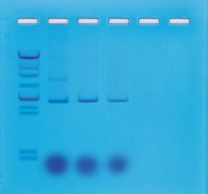 Mini-Prep Isolation of Plasmid DNA