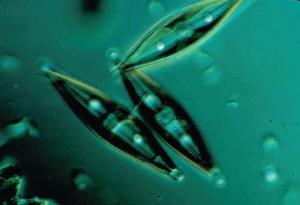 Ward's® Live Diatom cultures