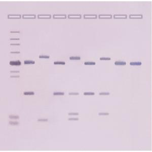 DNA fingerprinting by southern blot