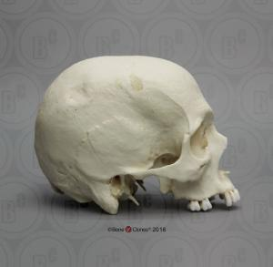 BoneClones® Human Male Cranium with Hammer Blows