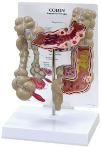 GPI Anatomicals® Colon Model