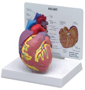 GPI Anatomicals® Basic Heart Model